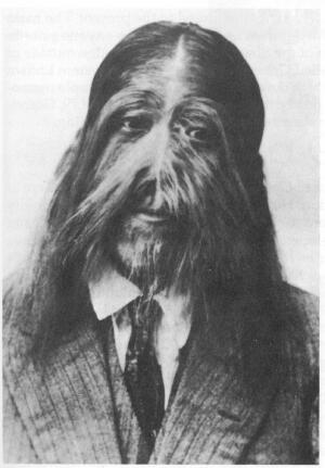 ... the effects of hypertrichosis, as did the Buddhist master Su Kong